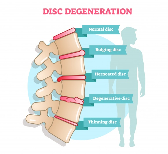 Lumbar Degenerative Disc Disease (DDD)