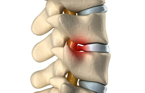 What is Herniated disc